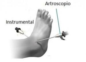 Uma via é usada para a câmera (artroscópio) e a outra para o instrumental (pinças, lâminas, etc)