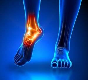 cirurgia do pe e tornozelo