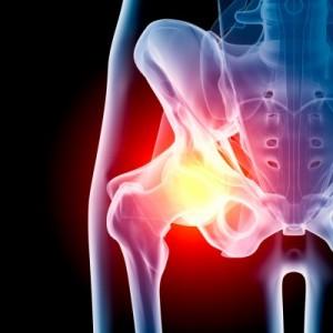 cirurgia do quadril ortopedia blumenau