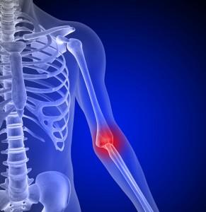 ortopedia blumenau cotovelo do cirurgia sintomas
