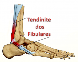 Tendinites do tornozelo